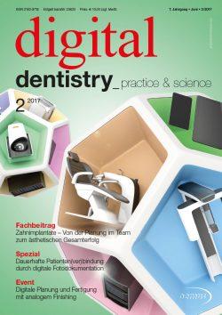 Zahnimplantate – Von der Planung imTeam zum ästhetischen Gesamterfolg in digital dentistry 2017/02