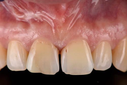 Behandlungsbeispiel Frontzähne - 1-1