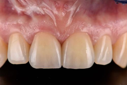 Behandlungsbeispiel Frontzähne - 1-2