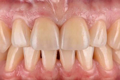 Behandlungsbeispiel Frontzähne - 1-3