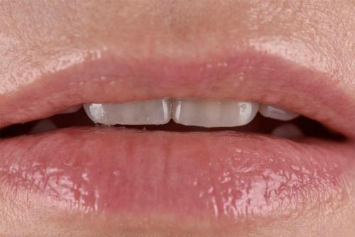 Behandlungsbeispiel Frontzähne - 1-4